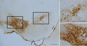 NURR1 deficiency is associated to ADHD-like phenotypes in mice