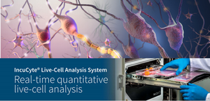 Live-Cell Analysis Workshop - A discussion on IncuCyte S3®
